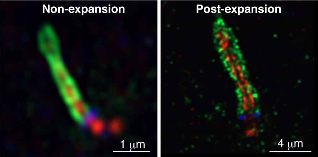 Airyscan analysis of the localization of MyosinVa (green; ciliary vesicle), polyglutamylated tubulin (pGlu-tubulin, red; axonemal microtubules), and CEP164 (blue; distal appendages of mother centriole) in non-expansion (left) and post-expansion (right) cells. The combinatorial use of Airyscan and expansion microscopy dramatically improves the optical resolution and makes multicolor super-resolution imaging more practical.