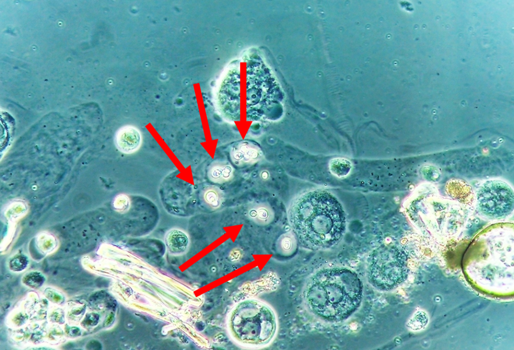 Cryptococcus spp. encapsuled yeasts entrapped within the proteinaceous matrix of the cast observed in the urine sediment. Phase contrast microscopy. Original magnification 400x.