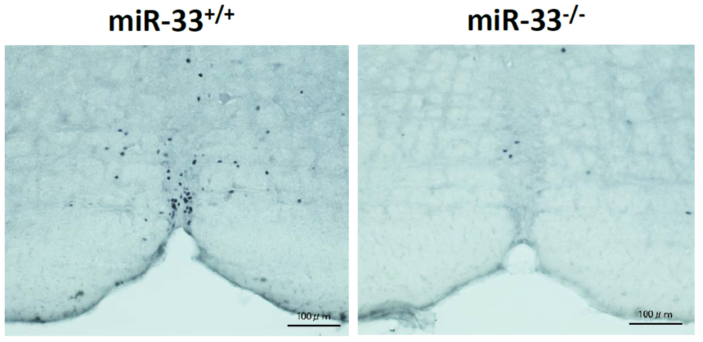 Representative images of c-fos immunohistochemistry in the rRPa of miR-33+/+ and miR-33−/− mice kept at 4°C for 2h. Scalebar:100μm. Image courtesy of Dr. Koh Ono and Dr. Takahiro Horie, Kyoto University (Japan)