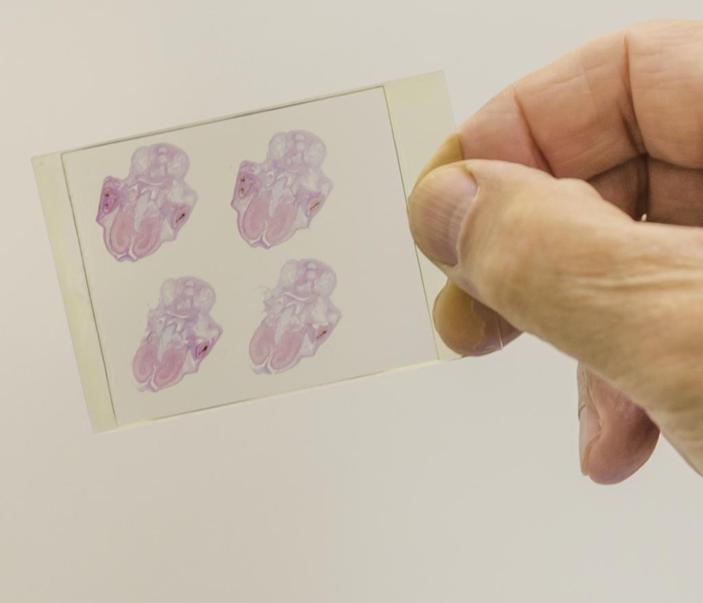 One of the elephant embryo slides