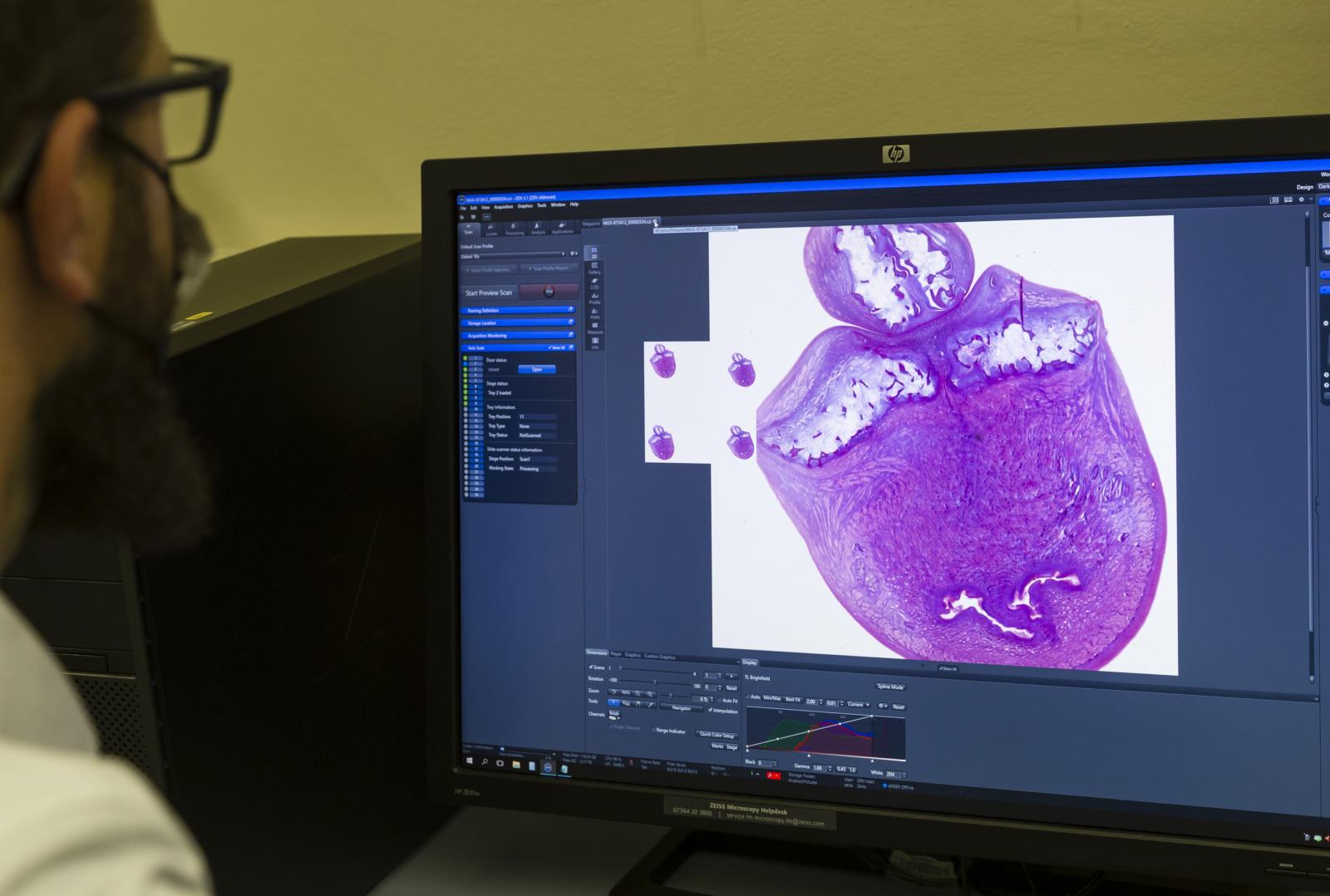 Imaging and digitization of the elephant embryo slides