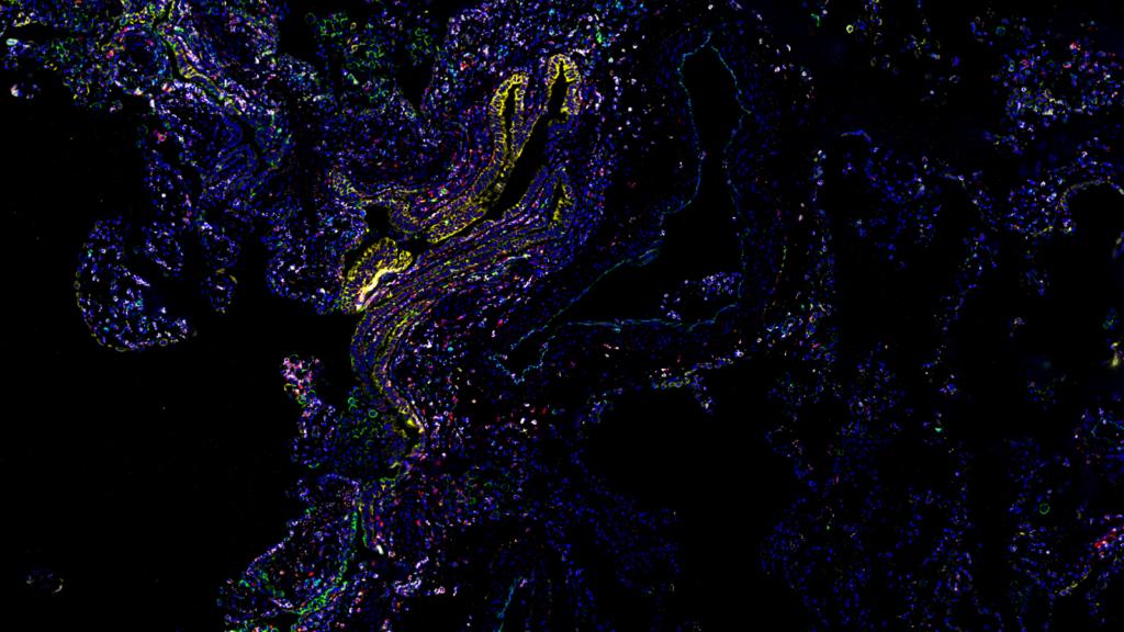 Human-Lung-Imaged-With-37-antibody-codex-panel-inset
