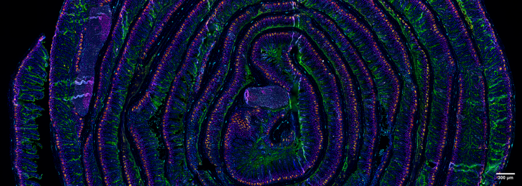 5 µm section of a formalin fixed paraffin-embedded mouse small intestine swiss roll. Section was stained with a 14 CODEX antibody panel designed to visualize intestinal stem and enteroendocrine cells (Lysozyme in red, villin in green, MHCII in gray, vimentin in cyan, Ki67 in magenta, and Olfm4 in yellow). Blue signals correspond to DAPI nuclear staining. Acquisition was done with a ZEISS Axio Observer microscope and processing with the Akoya CODEX Processor. Image courtesy of Prof. Andreas Schlitzer at the Life and Medical Sciences Institute (LIMES) of the University of Bonn (Germany).