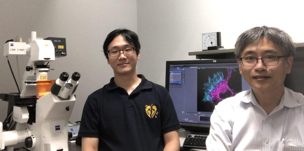Imaging the Cytoskeleton to Understand Schizophrenia