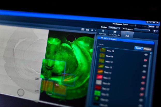 ZEISS ZEN Connect bietet intuitive Datenverwaltung, vereinfachte Workflows und grenzenlose Navigation.