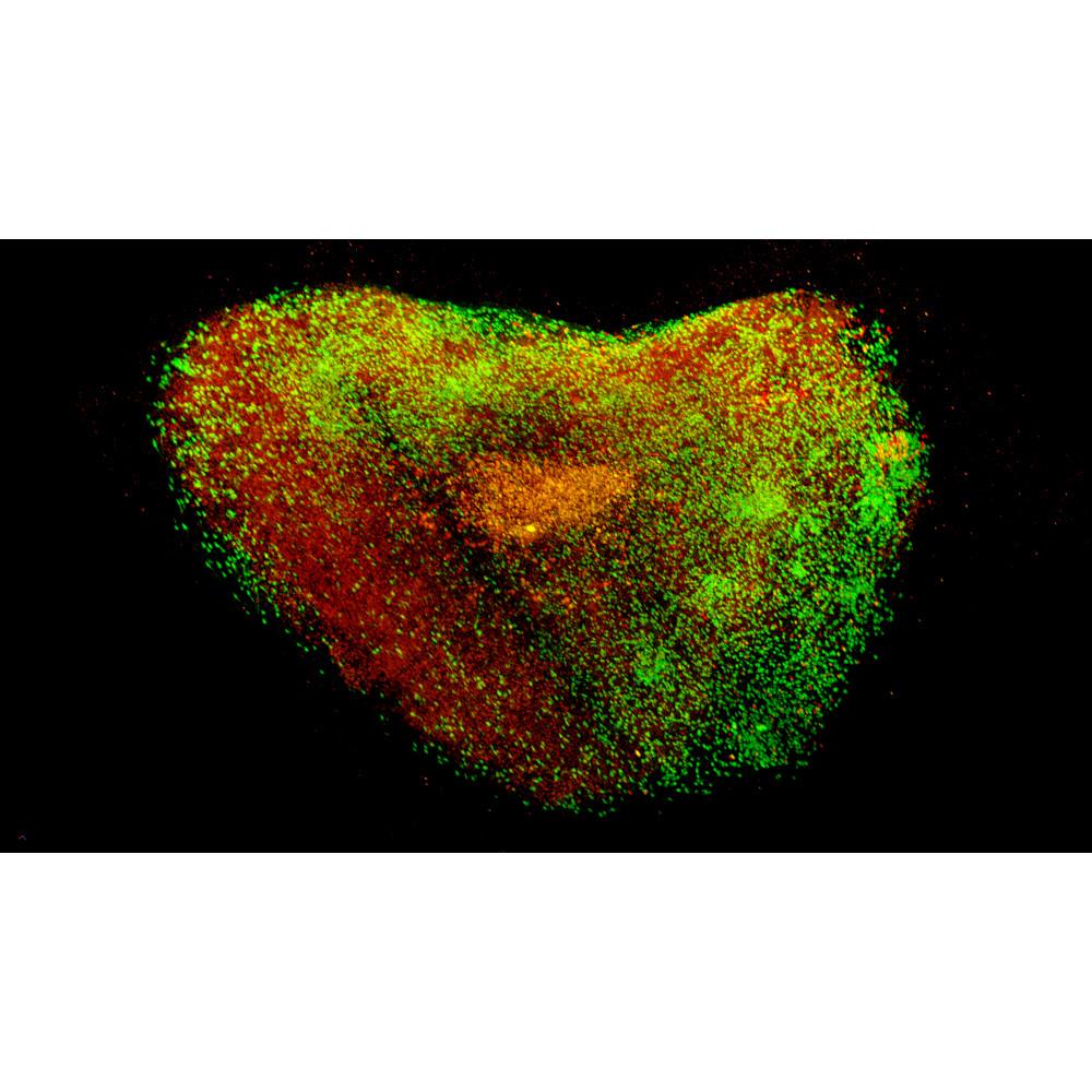 Neues Lichtblattmikroskop für Multiview-Imaging von großen Proben