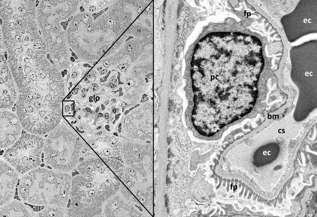 Digitales Zoomen im Übersichtsbild des Nierengewebes bis zum Glomerulus (glo). Rechte Seite: Podozyt (pc) mit Fortsätzen (fp), Basalmembran (bm) und Kapillarraum (cs) mit Erythrozyten (ec).