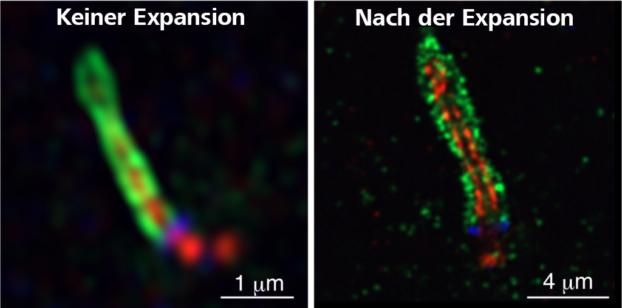 Airyscan-Analyse der Lokalisierung von MyosinVa (grün; Ciliarvesikel), polyglutamyliertem Tubulin (pGlu-tubulin, rot; axonemale Mikrotubuli) und CEP164 (blau; distale Anhänge der Muttercentriole) bei Zellen ohne Expansion (links) und nach der Expansion (rechts). Der Einsatz von Airyscan und Expansionsmikroskopie in Kombination verbessert die optische Auflösung erheblich und macht die mehrfarbige superauflösende Bildgebung praktischer.