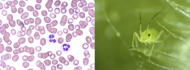 Left: Blood with granulocyte, acquired with ZEISS Primo Star, transmitted light, brightfield, courtesy of G. Spengler-Schulz, Alexander-Fleming- School, Stuttgart. Right: Aphid, acquired with ZEISS Stemi 305, reflected light, brightfield.