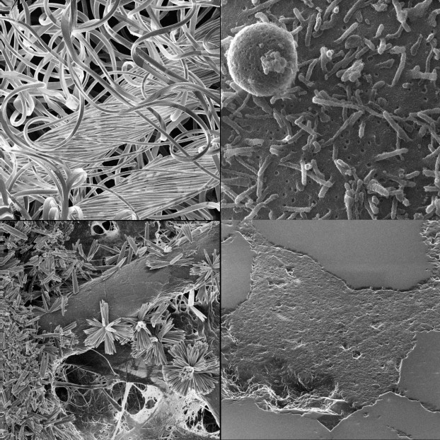 Comparison of Helium ion microscopy of insulating samples, clockwise: Cellulose based gauze, Bacteria on polysaccharide medium, ZnO on cellulose fiber, Tight sandstone. Courtesy of UofA nanoFAB & Peng Li.