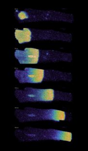 Single images of a time series. Calcium sparks labeled with Fluo 4 imaged in Cardiomyocytes with 50 frames per second. Courtesy of P. Robison, B. Prosser, University of Pennsylvania, USA.