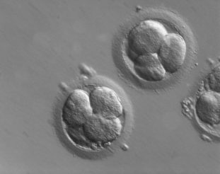 Human embryos, imaged with ZEISS Axio Observer and PlasDIC contrasting method