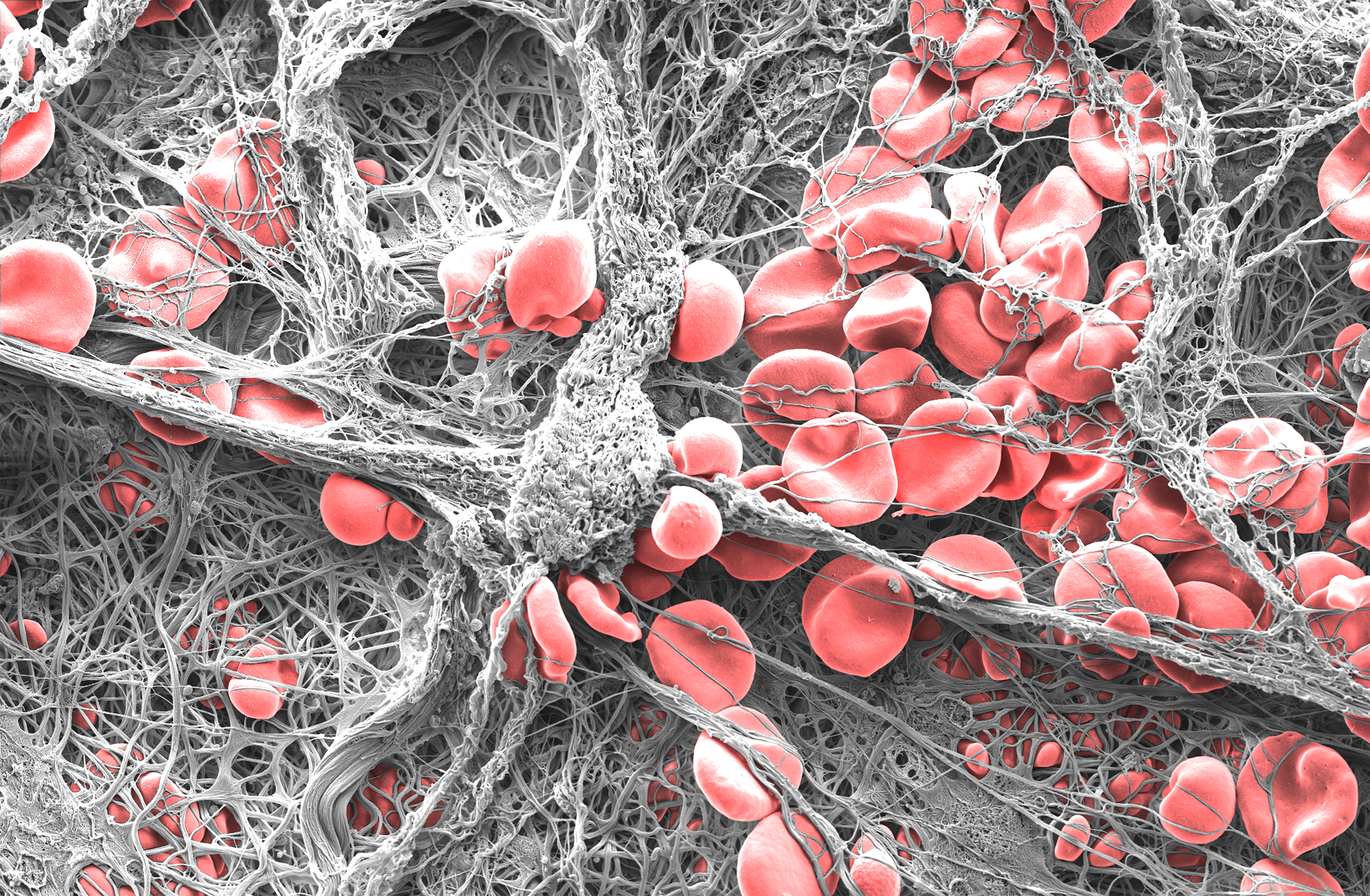 """Clotted"" by Dr Eli Moore - 1st prize winner of UniSA's Images of Research Photography Competition"